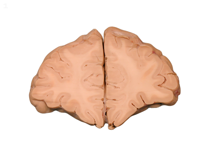 Coronal Brain Slices